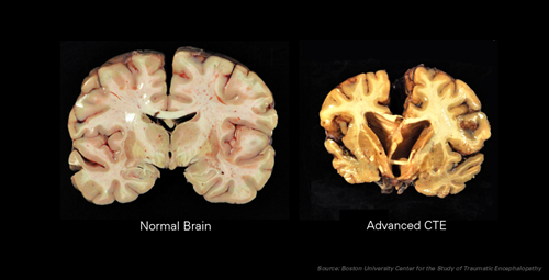 Teaching CTE found in 110 out of 111 brains of former NFL players